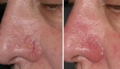 Salon kosmetyczny VENUS - Laserowe zamykanie naczynek Nowość