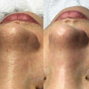 Salon kosmetyczny VENUS - Oczyszczanie wodorowe