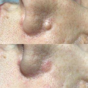 Salon kosmetyczny VENUS - Usuwanie znamion skórnych