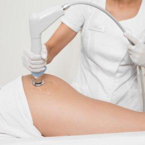 Salon kosmetyczny VENUS - Redukcja cellulitu