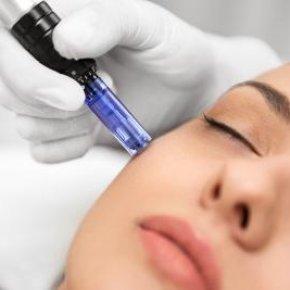 Dermapen - mezoterapia mikroigłowa - Salon kosmetyczny VENUS