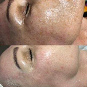 Salon kosmetyczny VENUS - Dermapen - mezoterapia mikroigłowa