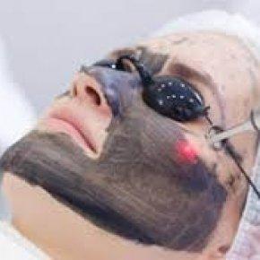 BLACK DOLL - laserowy peeling węglowy - Salon kosmetyczny VENUS