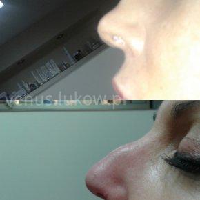Salon kosmetyczny VENUS - Korekcja nosa