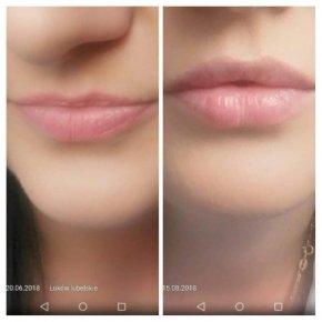 Salon kosmetyczny VENUS - Powiększanie i modelowanie ust