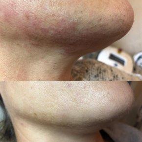 Salon kosmetyczny VENUS - Trwała epilacja laserowa SOPRANO ICE ®