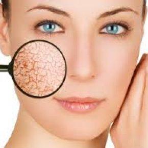 Salon kosmetyczny VENUS - Zamykanie naczynek i redukcja rumienia laserem CUTERA VARILITE ®